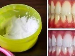 Как отбелить зубы в домашних условиях за 3 минуты: 100%-й результат