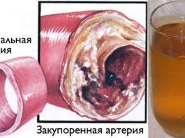 Очистите кровеносные сосуды с помощью всего одного стакана этого напитка