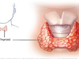 Как вылечить щитовидную железу с помощью всего двух ингредиентов