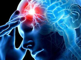 Вот 4 признаки, что у человека сегодня может случиться инсульт